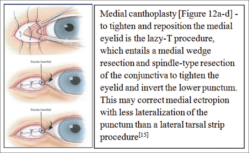 Eyelid Malpositions An Overview Pauly M Maya T J Kerala J Ophthalmol