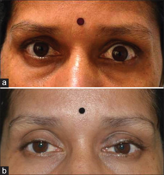 Eyelid malpositions: An overview Pauly M, Maya T J - Kerala J Ophthalmol