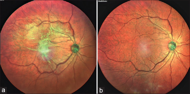 Figure 2 Multicolor Images Showing Epiretinal Membrane A Preoperative And B Postoperative Picture