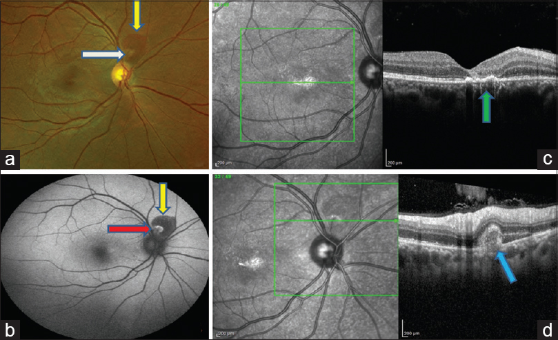 Figure 3: Color photograph of a patient with closed-globe injury showing subretinal hemorrhage superior to disc (yellow arrow) and retinal pigment epithelium changes at macula (a). Fundus autofluorescence shows hypoautofluorescence corresponding to hemorrhage (yellow arrow) with some area of hyperautofluorescence (red arrow) (b). Spectral-domain optical coherence tomography at foveal section shows loss of outer retinal layers with retinal pigment epithelium changes (green arrow) (c). Spectral-domain optical coherence tomography at lesion area showing hyperreflectivity in vitreous cavity and subretinally with loss of retinal pigment epithelium and outer retinal layers (blue arrow) (d)