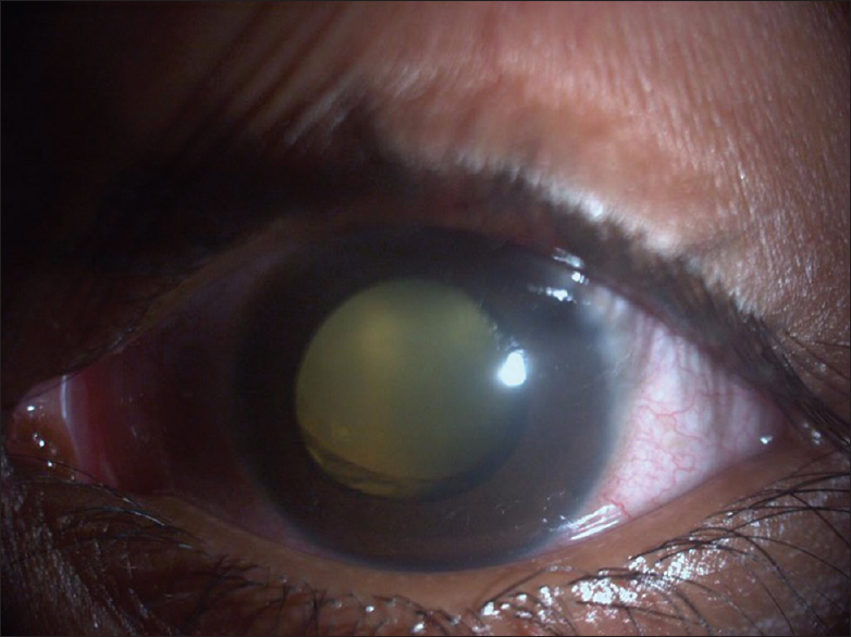Figure 1: Clinical photograph showing circumcorneal congestion, corneal edema, absence of microphthalmos