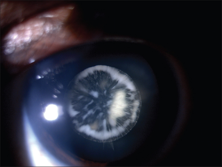 Figure 1: Image of the right eye showing developmental lamellar cataract in the form of spokes of a cartwheel