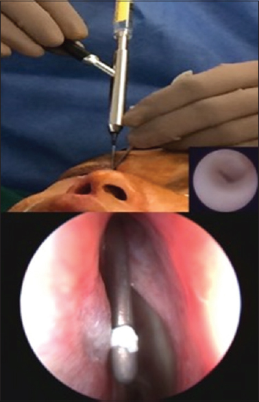 Figure 10: Endoscopic lacrimal duct recanalization showing micro-endoscope and created opening intranasally (picture courtesy – Dr. Gangadhara Sundar, NUH, Singapore)