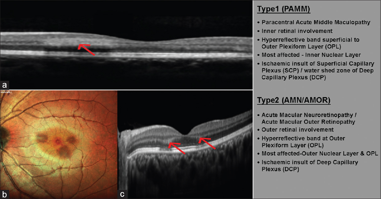 Figure 12: (a) Spectral domain optical coherence tomography of paracentral acute middle maculopathy shows hyperreflective band-like lesion located above the outer plexiform layer in the paracentral macula (b) Multicolour fundus photograph showing wedge-shaped lesions at the macula with apex directing toward the macula. (c) Spectral domain optical coherence tomography of acute macular neuroretinopathy shows hyperreflective band-like lesion located at the junction of the outer plexiform and inner nuclear layer